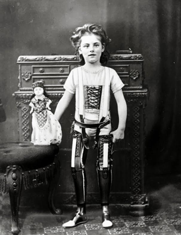 gambe-artificiali-uk-ca-1890