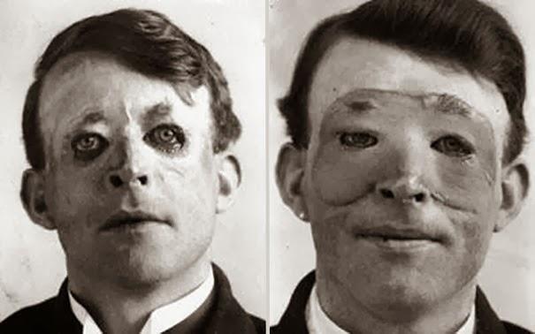 walter-yeo-uno-dei-primi-a-sottoporsi-chirurgia-plastica-ed-a-trapianto-di-pelle-1917