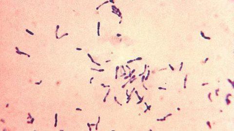 Il bacillo della difterite